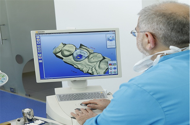 Cerec crown or inlay IN JUST ONE SINGLE VISIT