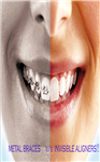 Bracket-free orthodontics