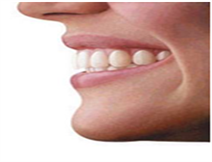Invisalign® and Clear Aligner®